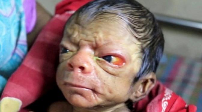 Baru Lahir Tampang Bayi Ini Setua Kakek 80 Tahun Citizen6 Liputan6 Com
