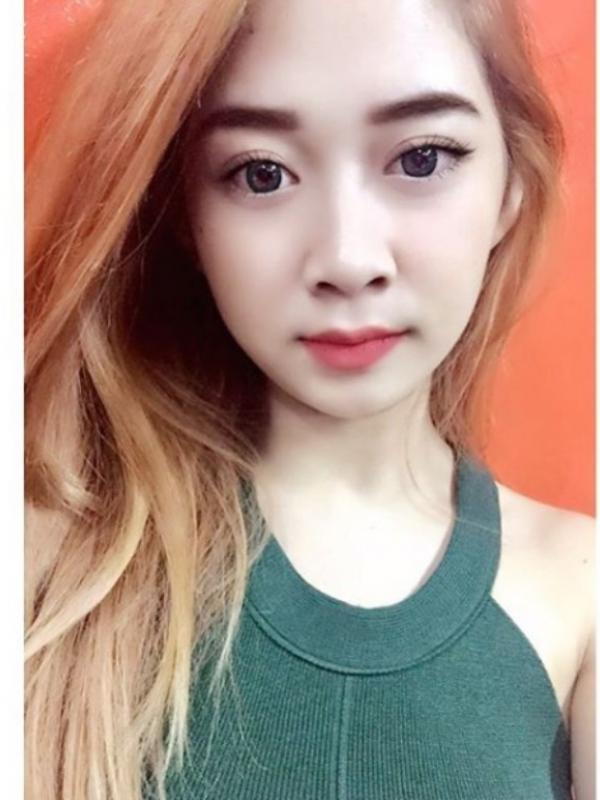Intan Novita, wanita cantik asal Bandung yang disiram ai keras oleh orang tak dikenal. (Foto: Instagram/Intannov1ta)